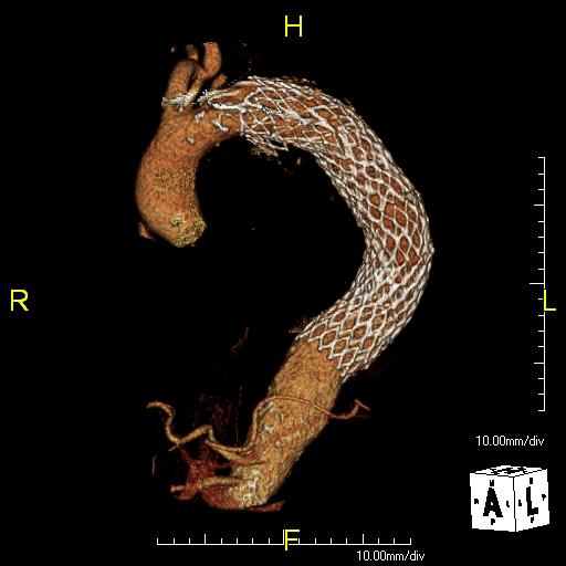 Medical Imaging Data and Computational Fluid Dynamics | | Dr